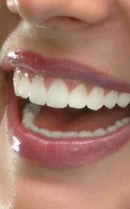 A closeup of a healthy smile