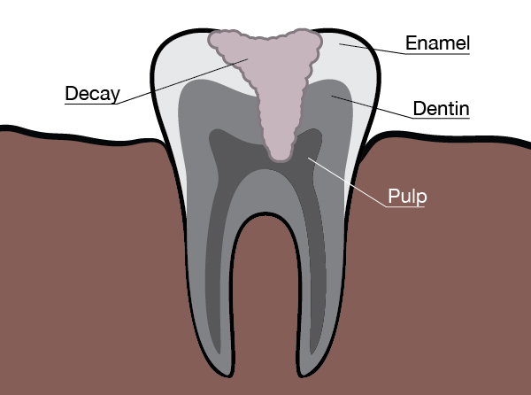 Infographic showing the parts of a tooth