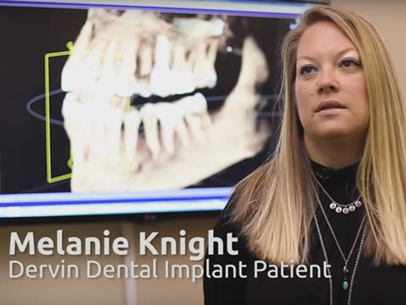 An actual patient of Dr Dervin's who received dental implants from this dentist in Shawnee, KS