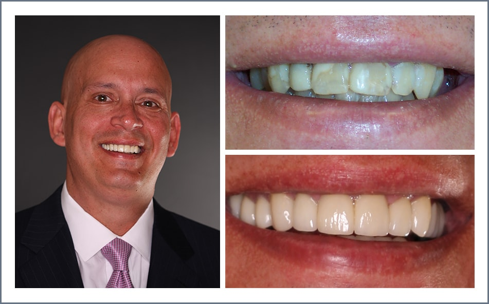 Check out Tom's new smile thanks to our Shawnee dental work.
