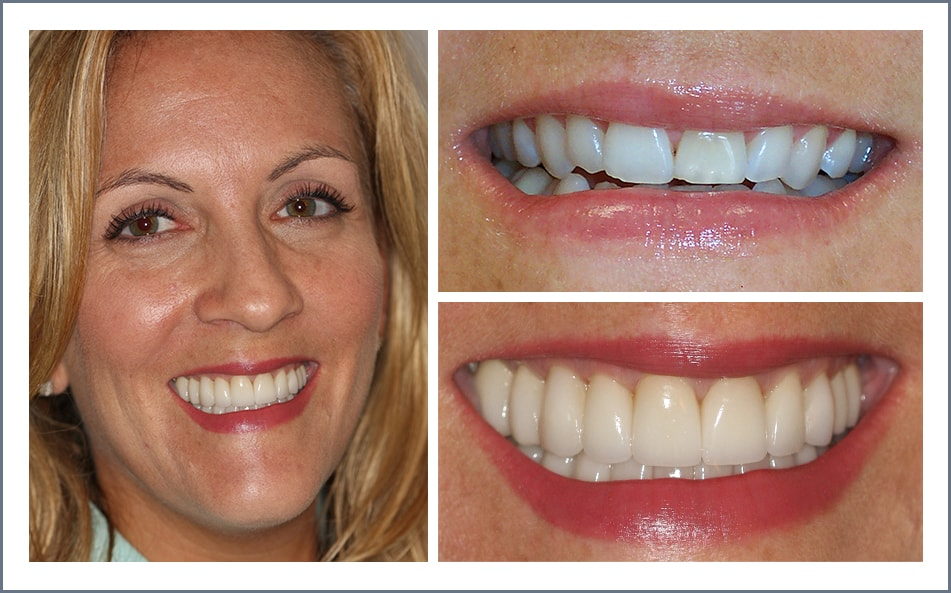 Check out Kim's new smile thanks to our Shawnee dental work.