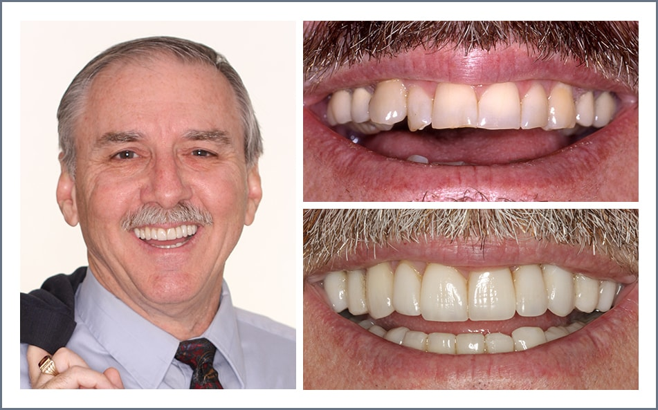 Check out Darrel's new smile thanks to our Shawnee dental work.