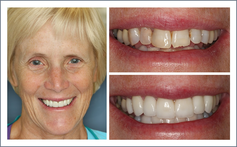 Check out Jacqui's new smile thanks to our Shawnee dental work.