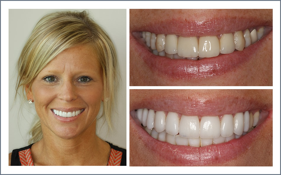 Check out Jen's new smile thanks to our Shawnee dental work.