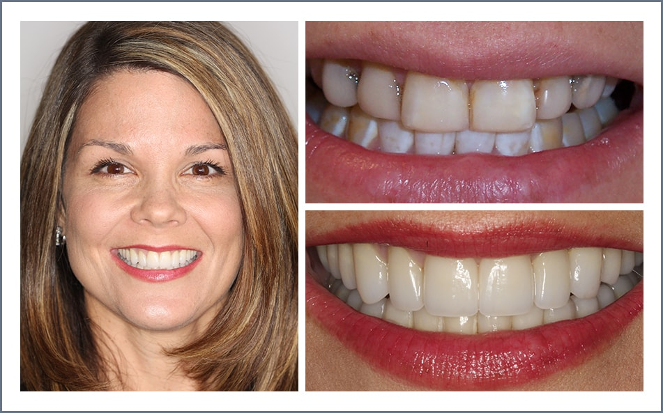 Check out Julie's new smile thanks to our Shawnee dental work.