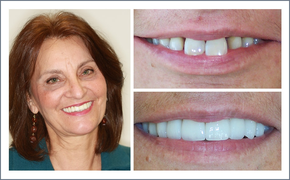 Check out Marsha's new smile thanks to our Shawnee dental work.